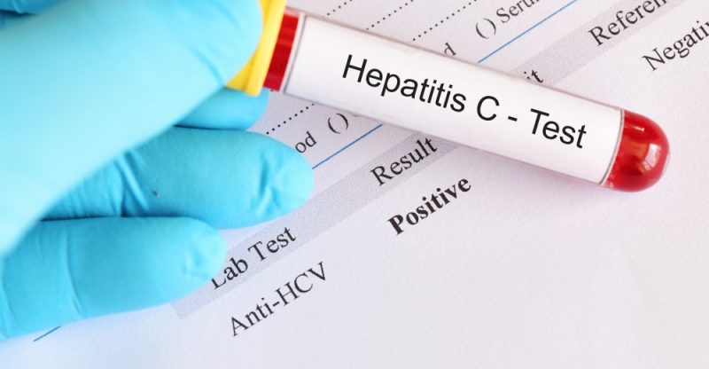 Symptoms and Warning Signs of Hepatitis C