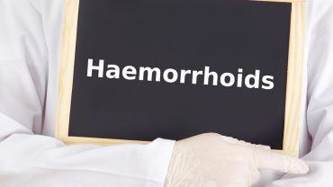 Hemorrhoids – Symptoms, Causes and Treatment