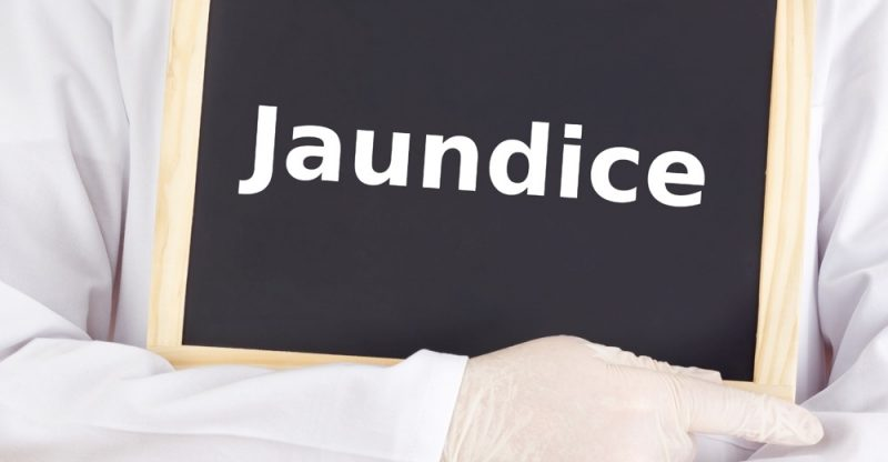 Jaundice: Causes, Symptoms and Treatments