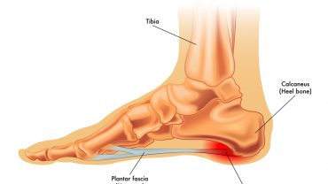 Plantar Fasciitis: Symptoms, Causes, and Treatment