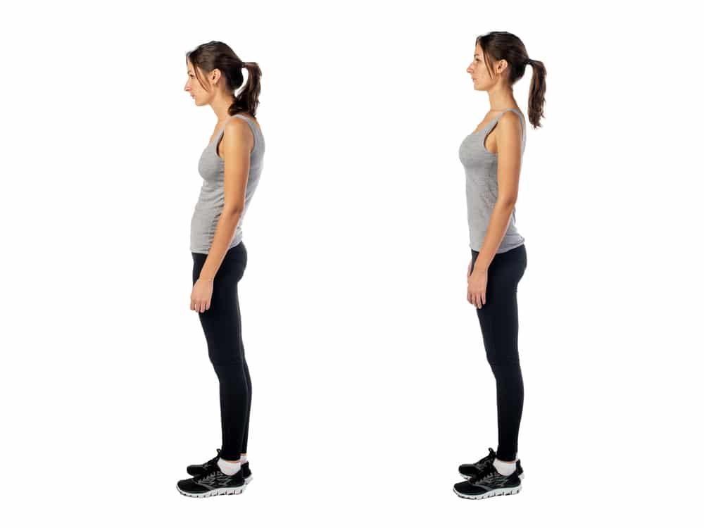 Scoliosis: Causes, Symptoms, and Treatment
