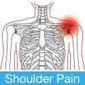 Shoulder Pain: Causes, Symptoms and Treatment