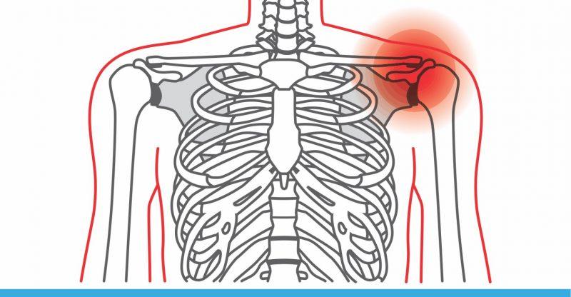 Shoulder Pain: Causes, Symptoms and Treatment