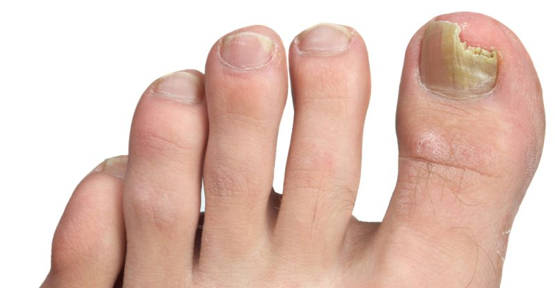 11 Home Remedies for Toenail Fungus