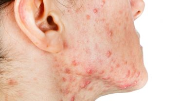 Skin Infection: Types, Causes and Treatments