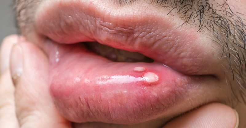 Mouth Sores: Causes, Types, Symptoms, and Treatments