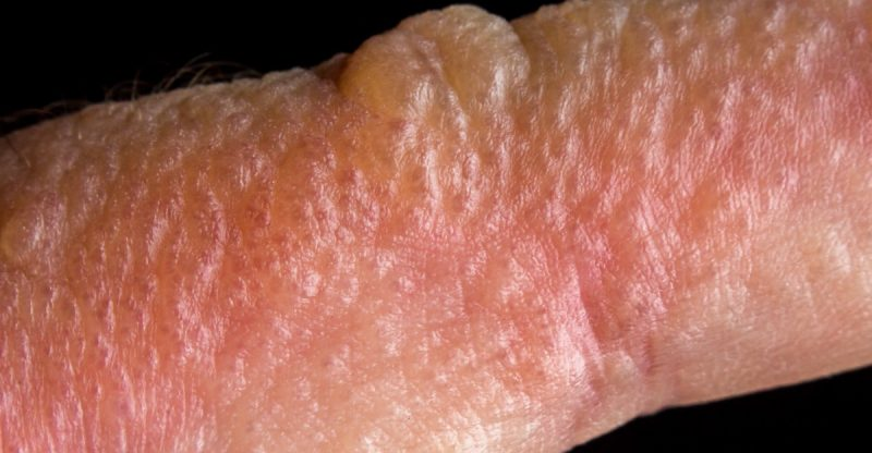 Poison Ivy Rash: Causes, Treatment and Prevention