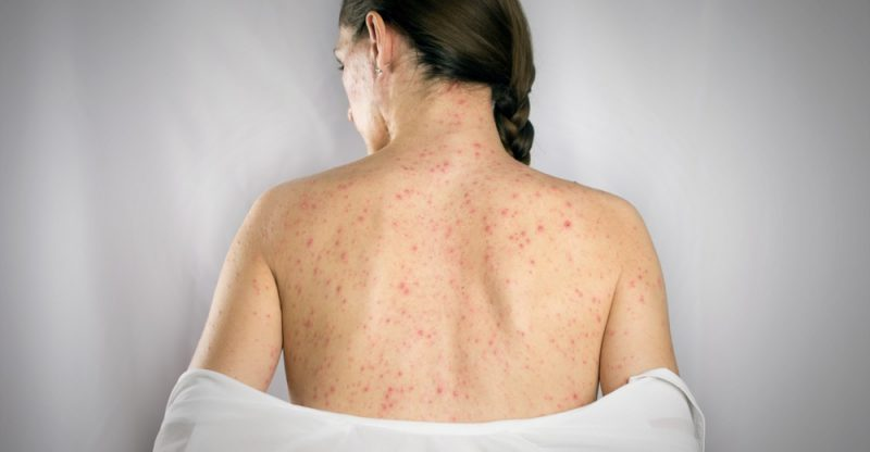 shingles symptoms causes and treatment natural food series